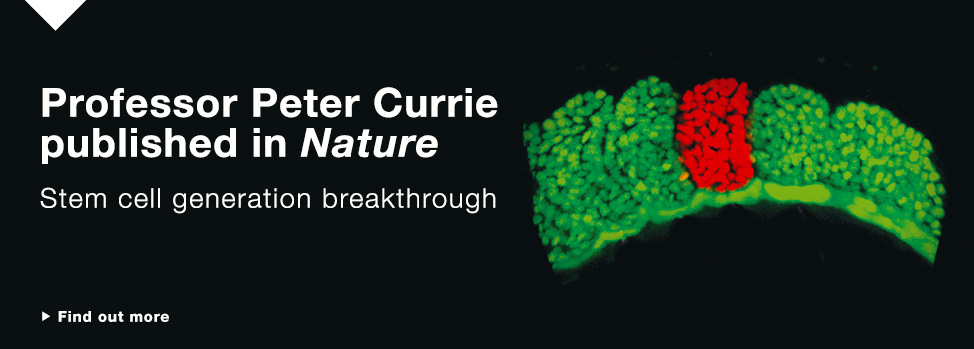 professor peter currie http://monash.edu/news/show/cell-discovery-brings-blood-disorder-cure-closer