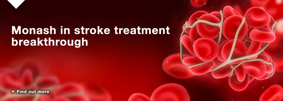 Breakthrough in stroke patient outcomes http://www.med.monash.edu.au/news/2015/breakthrough-in-stroke-patient-outcomes.html