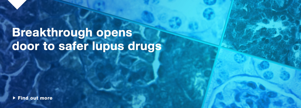 Breakthrough opens door to safer lupus drugs http://www.med.monash.edu.au/news/2015/breakthrough-opens-door-to-safer-lupus-drugs.html