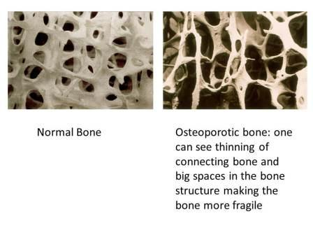 definition of osteoporosis Read medical definition of osteoporosis osteoporosis: thinning of the bones, with reduction in bone mass, due to depletion of calcium and bone proteinosteoporosis predisposes a person to fractures, which are often slow to heal and heal poorly.